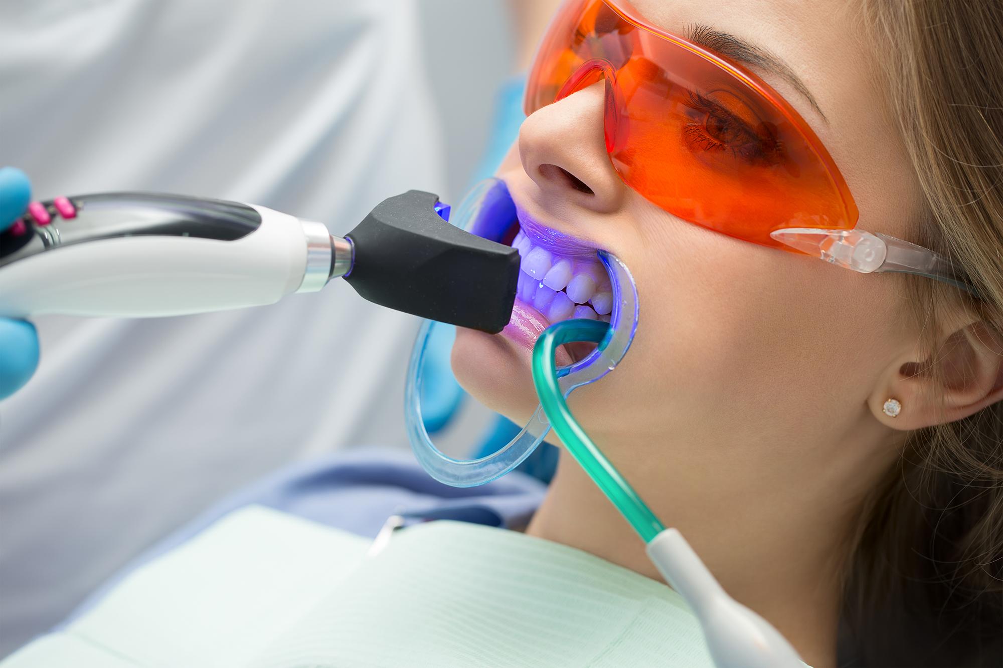 Lakewood Ranch Dental Services - Teeth Whitening